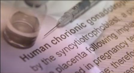 human chorionic gonadotropin - image of HCG